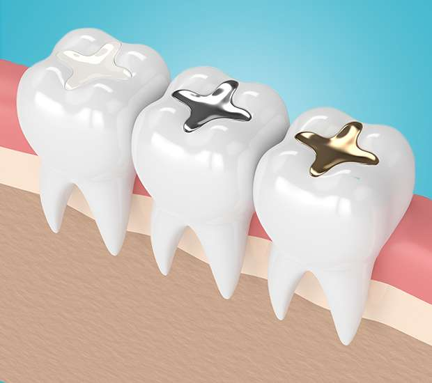 Glendale Composite Fillings
