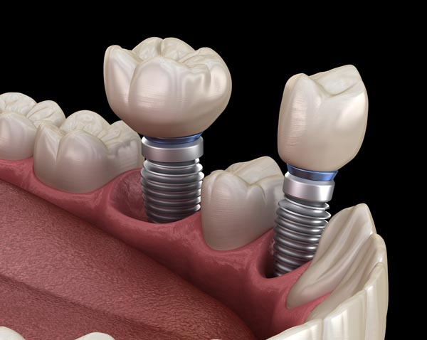 What Are Mini Dental Implants?