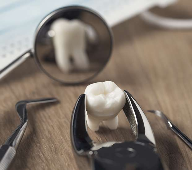 Glendale When Is a Tooth Extraction Necessary
